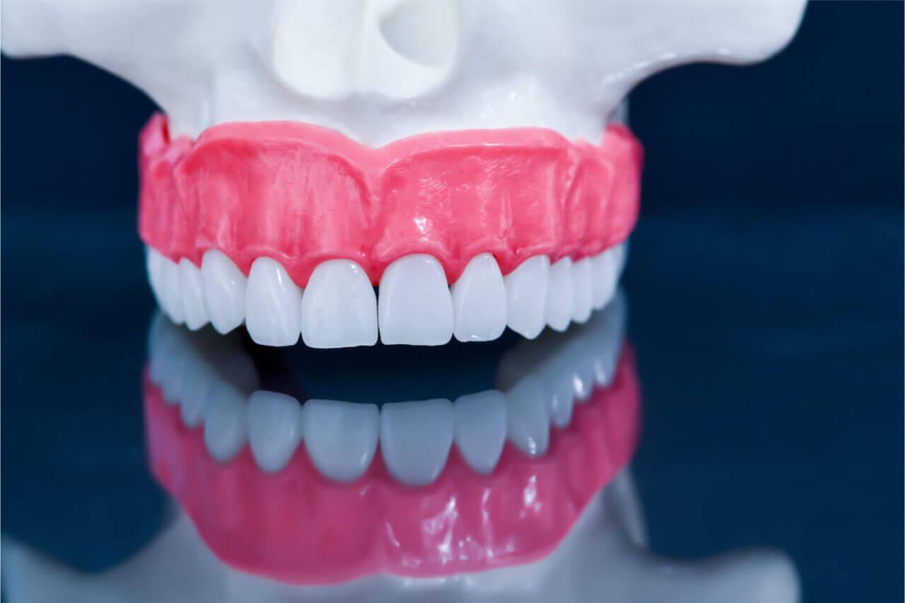 average cost denture reline